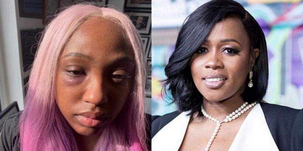 Assault Charges Dropped Against Remy Ma